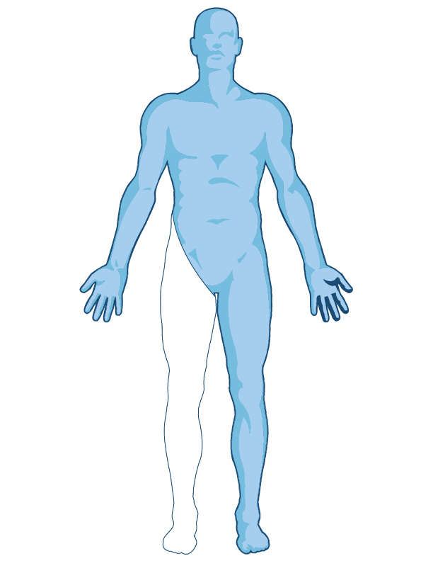 diagram showing the limb that is amputated in a hemipelvectomy