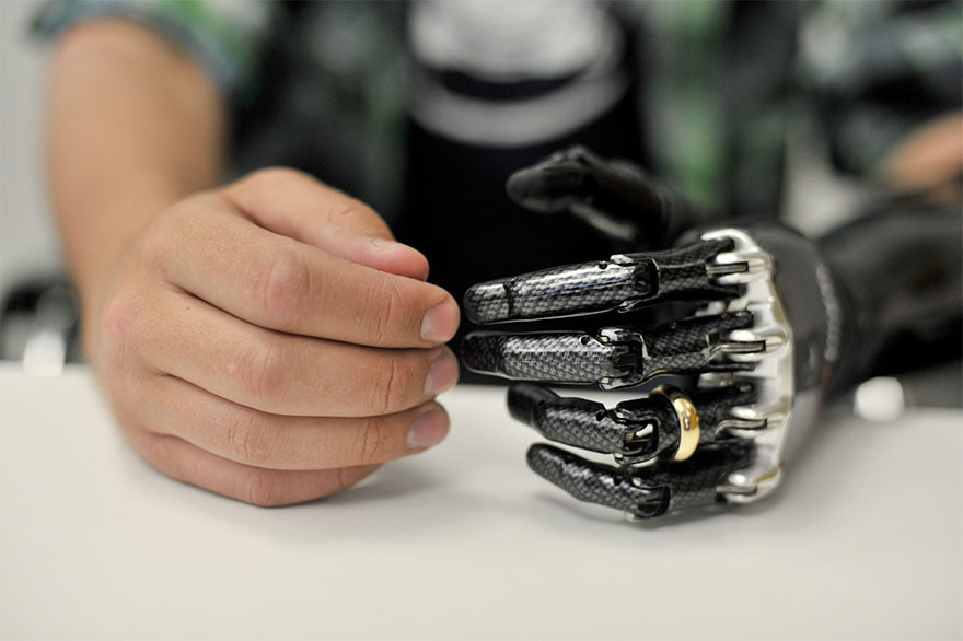 BeBionic myoelectric hand with wedding ring