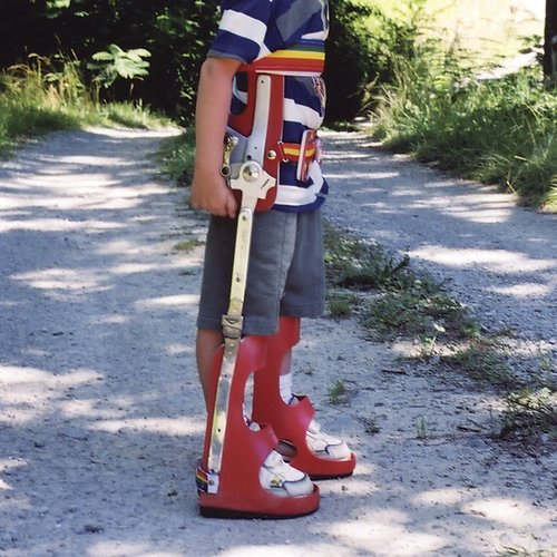 A child wearing a reciprocating gait orthosis on his right leg